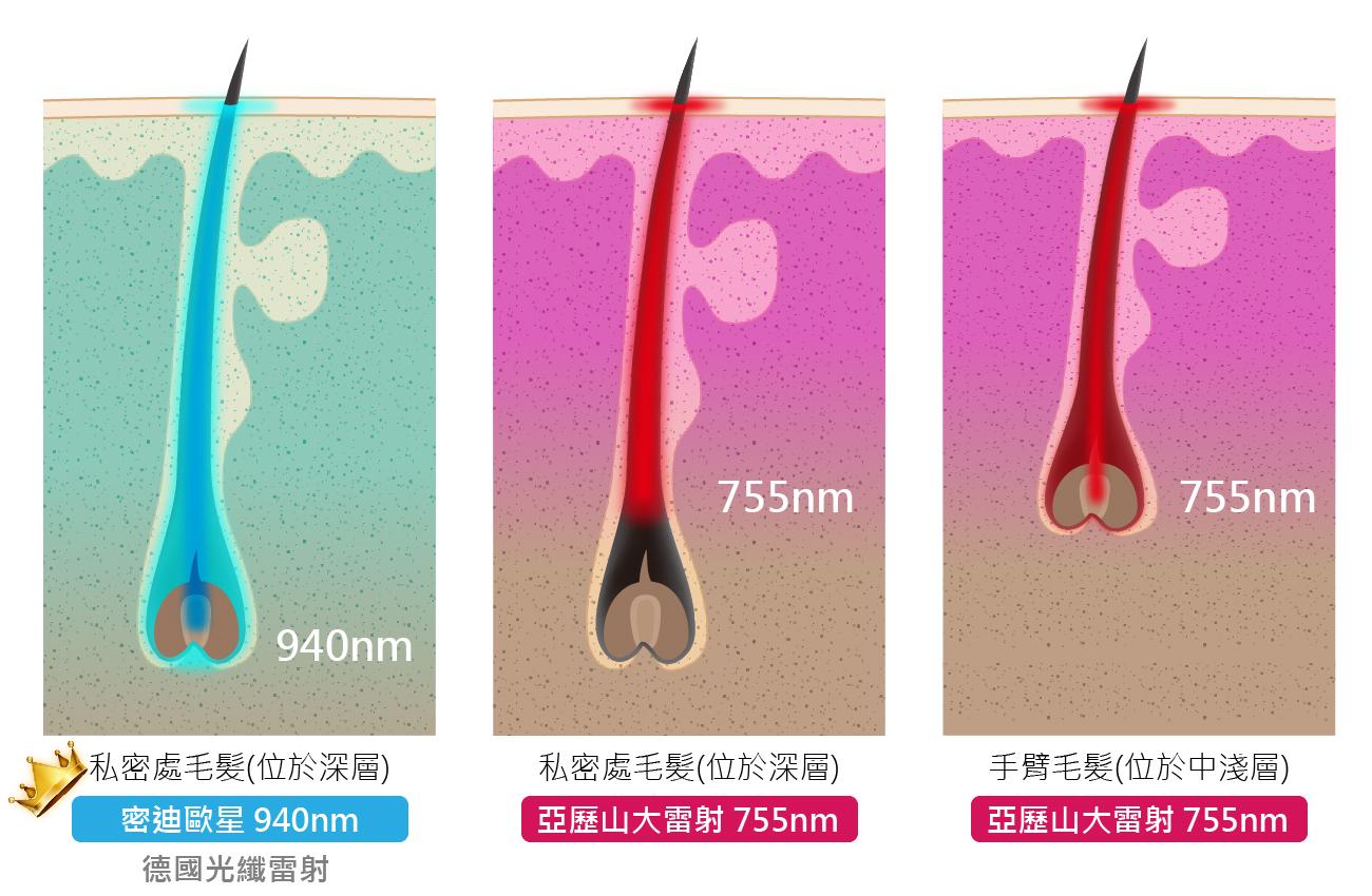 德國光纖除毛比較圖
