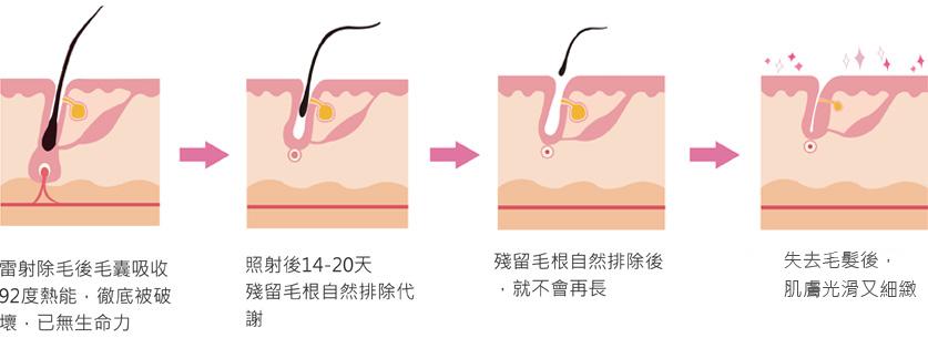 雷射除毛治療後毛髮脫落過程