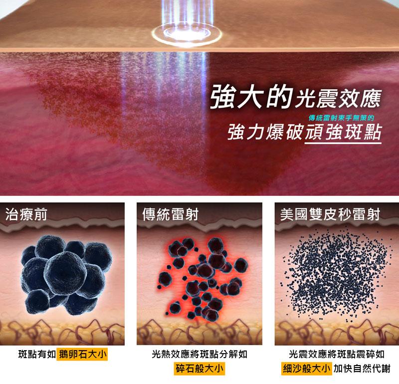 755蜂巢皮秒雷射將斑點震碎如「細沙般微小」再讓人體自然代謝達到除斑效果。
