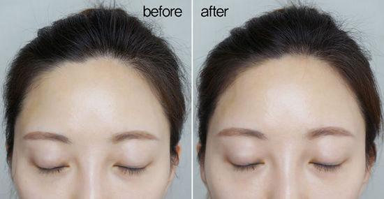 髮際線除毛