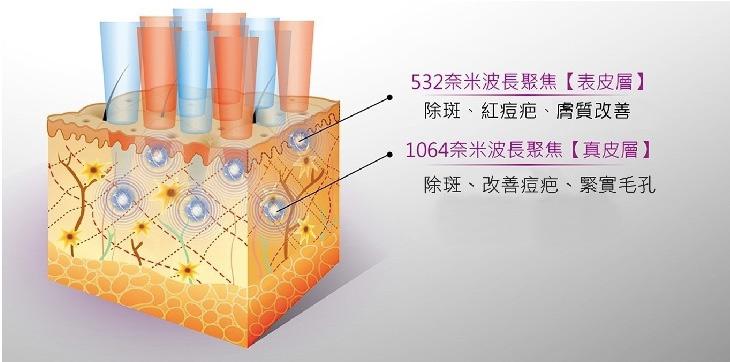 皮秒雷射刺激膠原蛋白與彈力纖維的長期增生