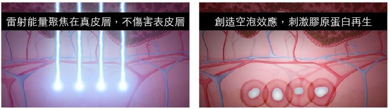 皮秒雷射長期刺激膠原蛋白再生