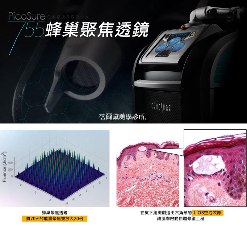 PicoSure 755蜂巢聚焦透鏡