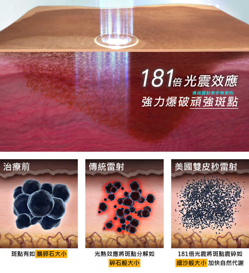 將斑點震碎如「細沙般微小」再讓人體自然代謝達到除斑效果。