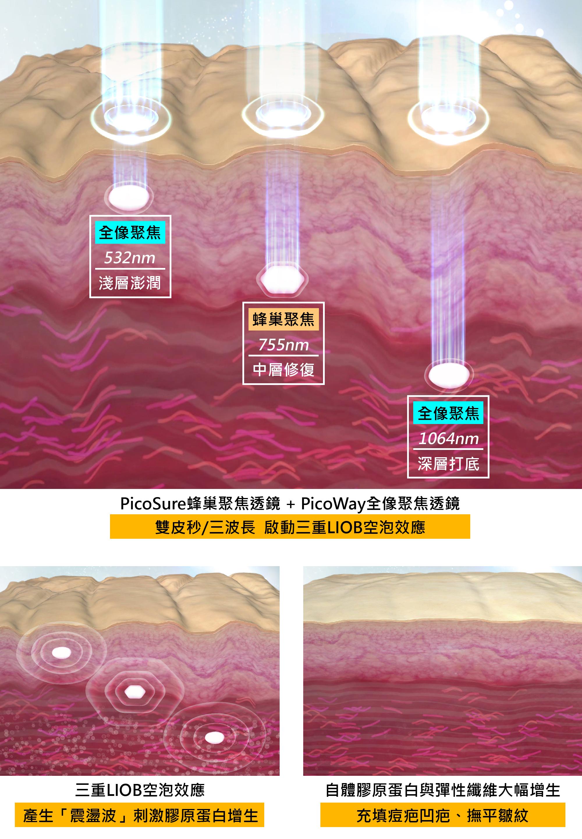 除痘疤的關鍵在於聚焦透鏡技術