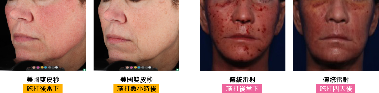 除痘疤 術後恢復比較